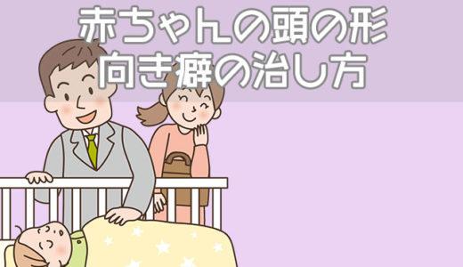 赤ちゃんの頭の形が悪い…睡眠中の向き癖はどうしたらなおる?